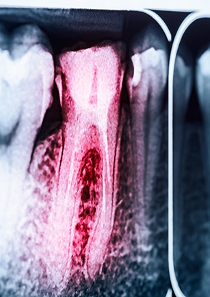 X-ray of root canal treated tooth