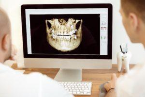 3D image using cone beam scanner
